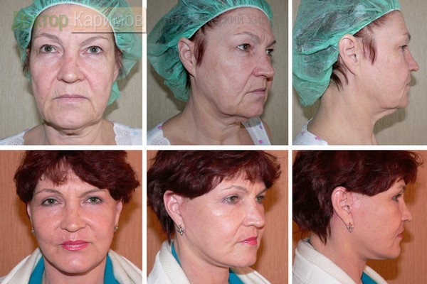 Рейтинг хирургов по маммопластике санкт петербург