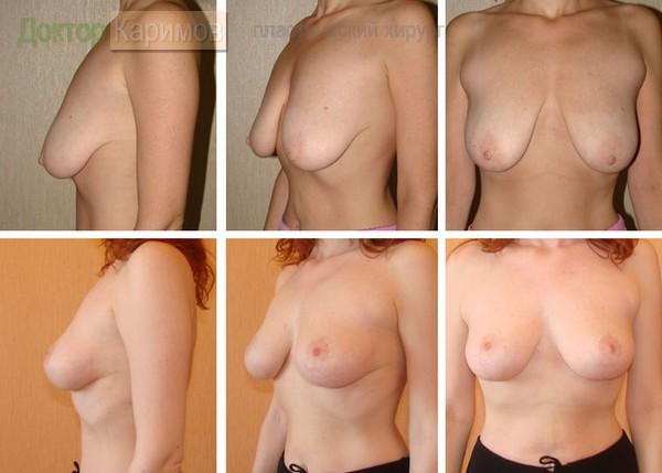 Упражнения для увеличения груди в к