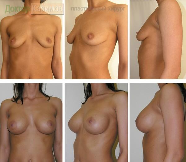 Книга для увеличения груди
