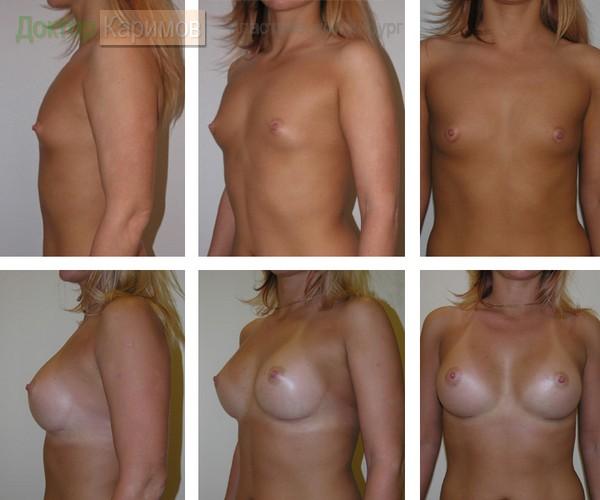 Фото до и после увеличения груди. Фото предоставленные пациентами.