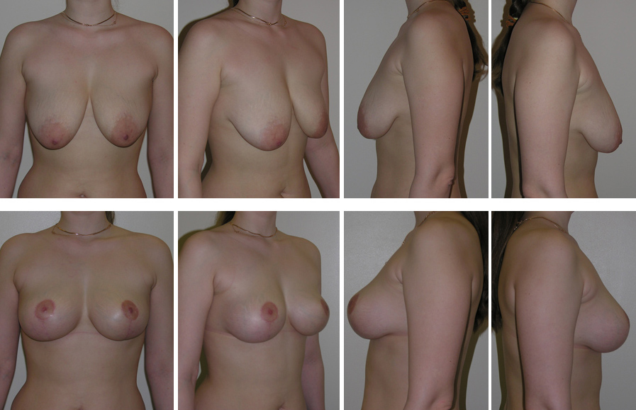 Как увеличить размер груди за неделю