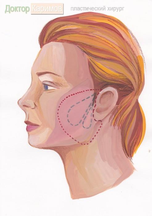 Пластическая операция лица, носа, век, ушей (отопластика), живота, рубцов, груди, липоскульптура, интимная пластика