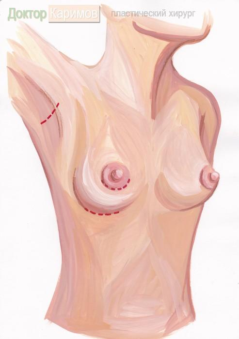 увеличение груди в боровлянах