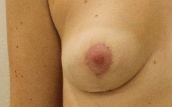 Как увеличить грудь для девочек