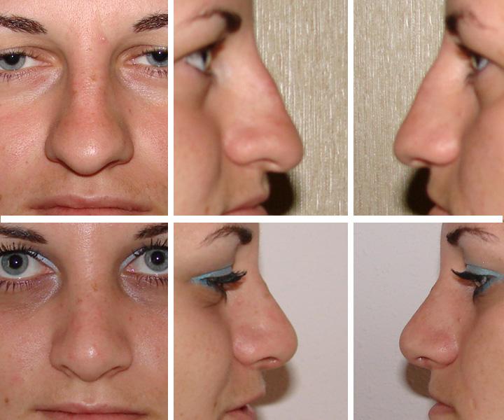 Сколько стоит ринопластика носа в спб